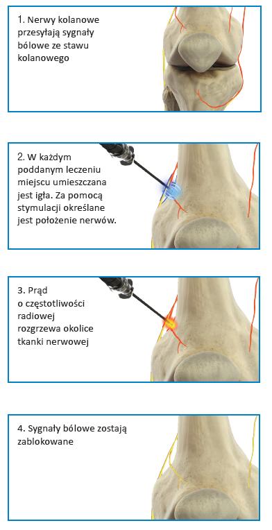 leczenie bolu kolan cosman